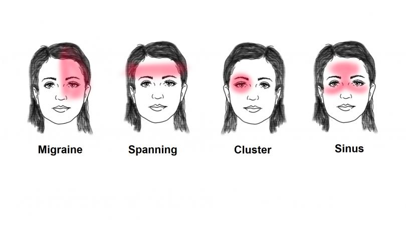 verschillende soorten hoofdpijn